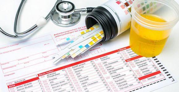 Для чего нужен общий анализ крови на сахар