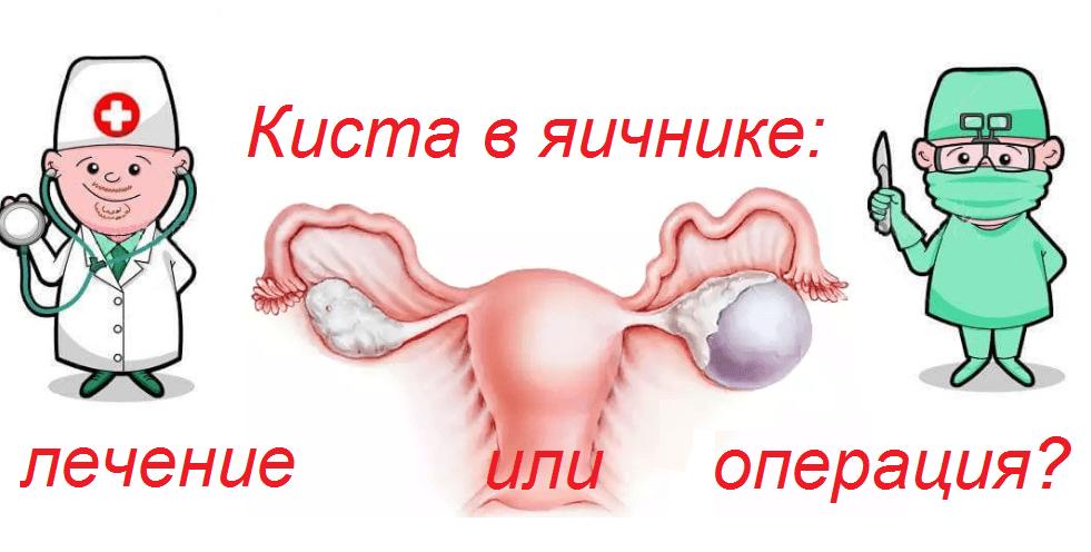 Киста яичника лечение без операции – Отзывы о лечении кисты яичника народными средствами