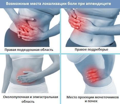 Возможные места локализации боли
