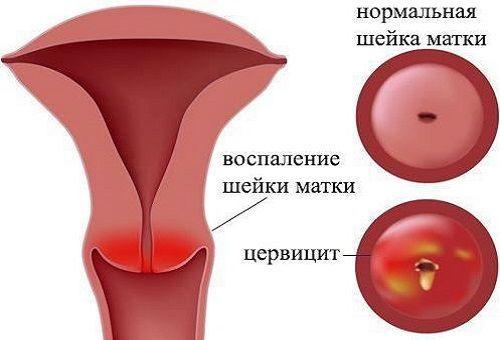Воспаление шейки матки изнутри