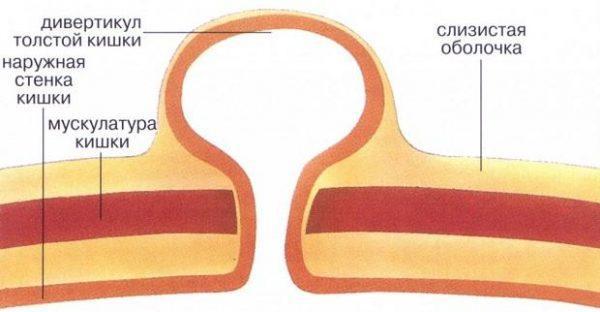 Дивертикулит толстой кишки