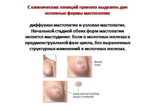 Диффузная и узловая мастопатия