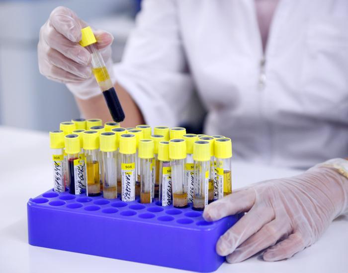 Для более точно диагноза необходимо сдать анализы, и пройти обследование