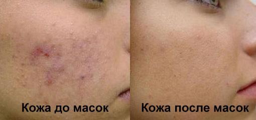 До и после масок с аспирином