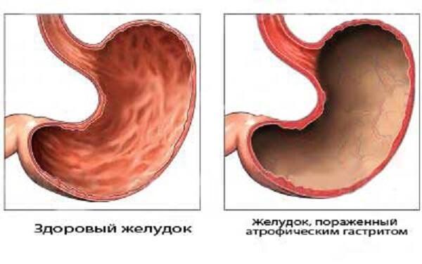 Атрофический рефлюкс гастрит симптомы и лечение