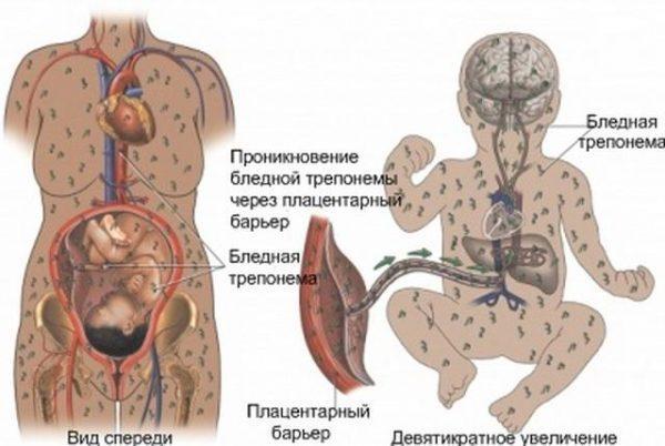 Заражение пневмонией ребенка в утробе