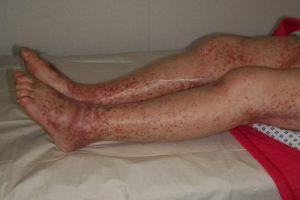 Идиопатическая тромбоцитопения, проявления на коже