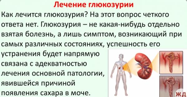 Лечение глюкозурии