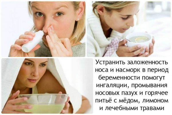 Лечение заложенности носа при беременности