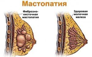 Мастопатия изнутри
