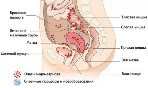 Места образования очагов эндометриоза