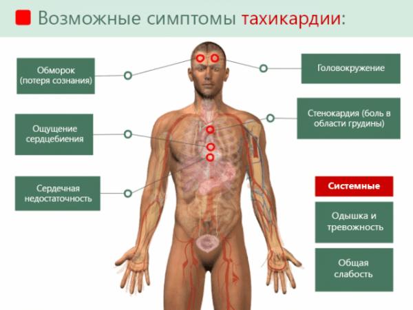 Общие симптомы тахикардии