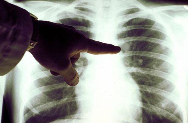 Онкология легких: симптомы