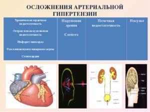 Осложнения артериальной гипертензии