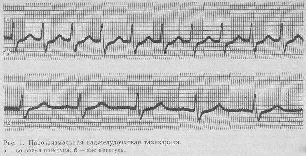 Пароксизмальная наджелудочковая тахикардия