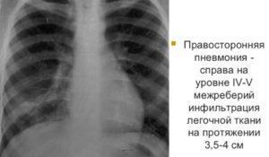 Правосторонняя пневмония на рентгене