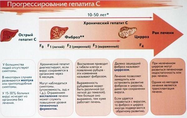 Прогрессирование гепатита С