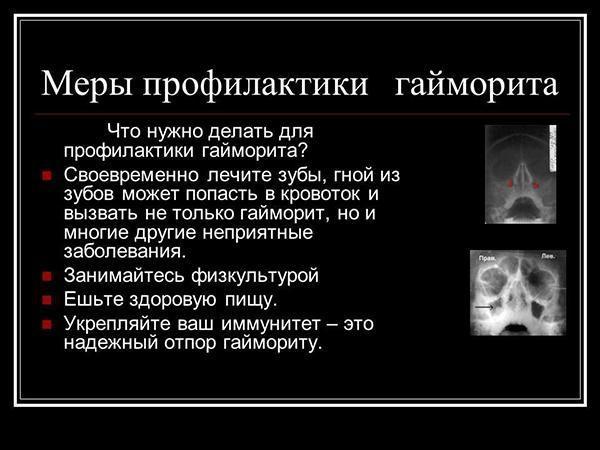 Профилактика гайморита