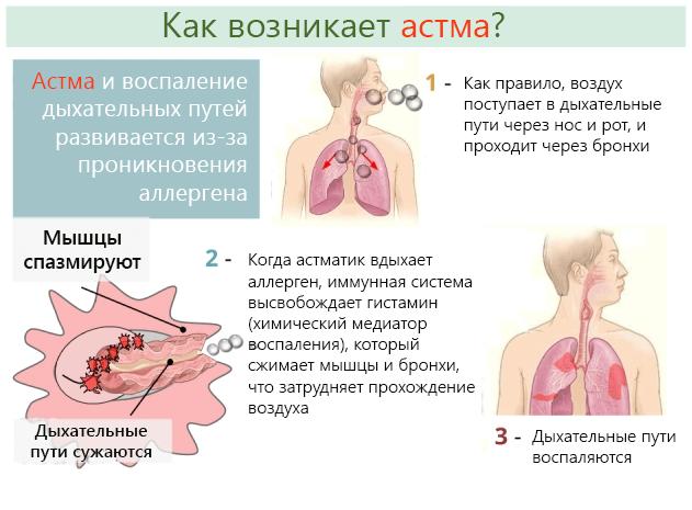 Причины возникновения астмы