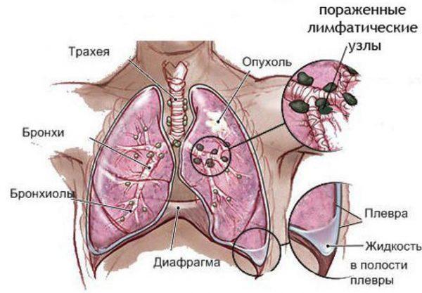 лечение рака без химиотерапии