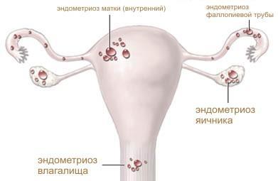 Расположение эндометриоза