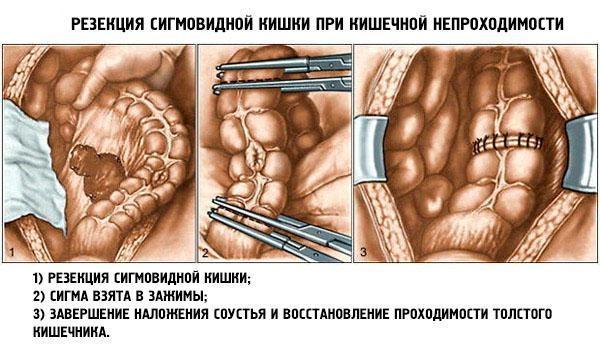 Резекция кишки при кишечной непроходимости