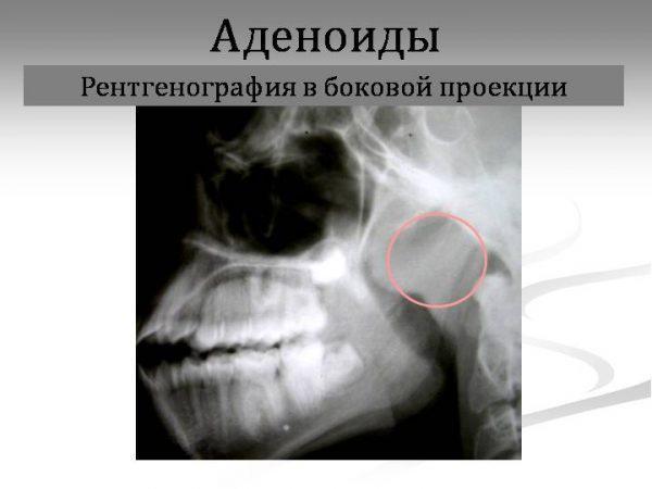 Рентгенография в боковой проекции аденоидов