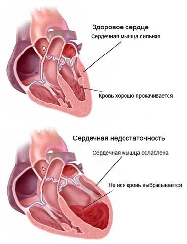 Сердце при сердечной недостаточности