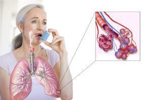 Симптомы бронхиальной астмы на ранних стадиях заболевания