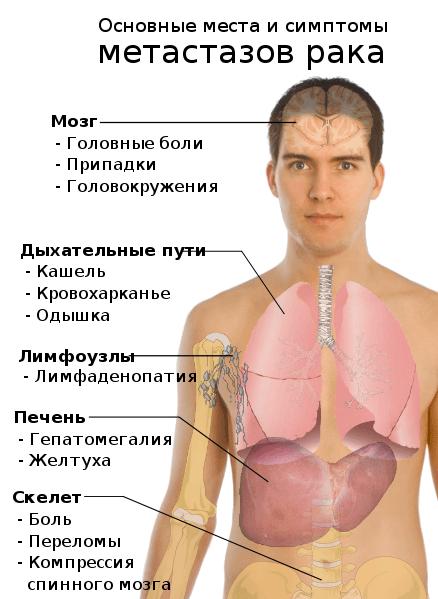 Симптомы метастазов рака