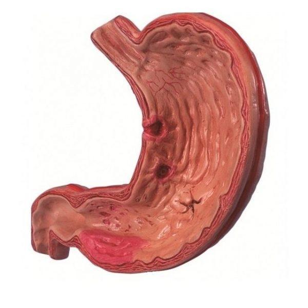 Слизистая желудка при некротическом гастрите