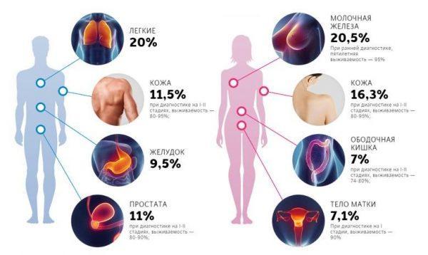 Статистика заболеванием раком