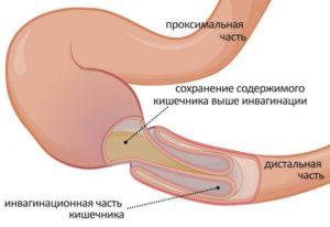 Схематичное изображение инвагинационной части кишечника