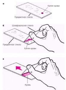 Техника приготовления мазка для исследования цитологии крови