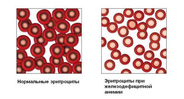 Уровень эритроцитов при анемии