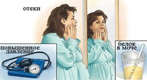 Характерные симптомы эклампсии