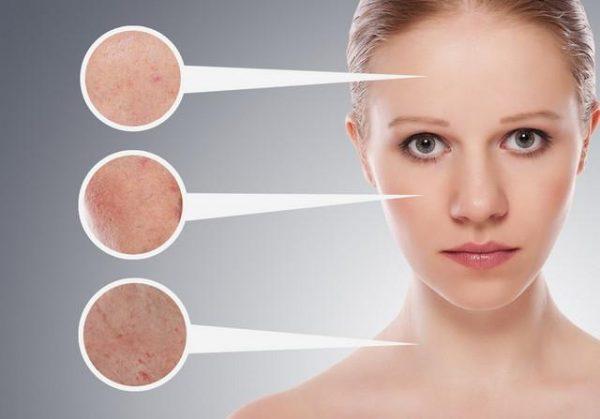 Хороший эффект дают косметические препараты, в состав которых входят экстракты алоэ, огурца, водорослей, масло чайного дерева