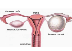 Эндометриоидная