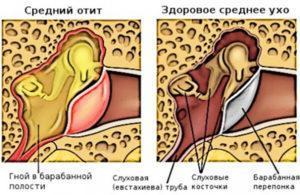 Гнойное воспаление среднего уха