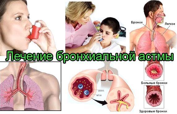Заболевание по ходу лечения делят на несколько типов