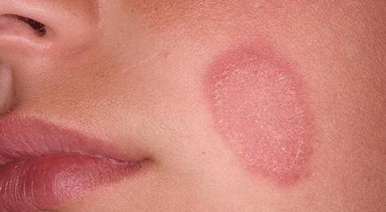 Розовый лишай: лечение мазями в домашних условиях, подробная информация