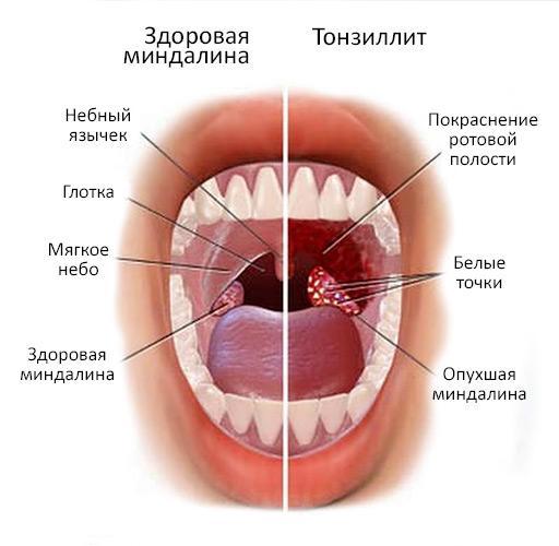 Внешнее проявление тонзиллита
