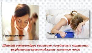 Головокружения и тошнота при шейном остеохондрозе