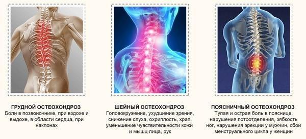 К чему приводит остеохондроз