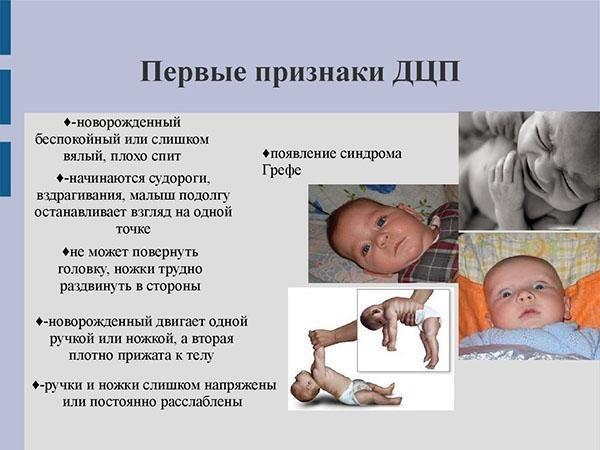 Первые признаки ДЦП у новорожденного