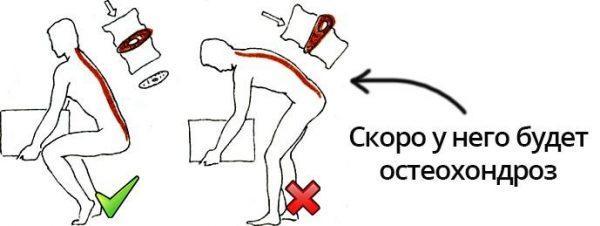Причина остеохондроза