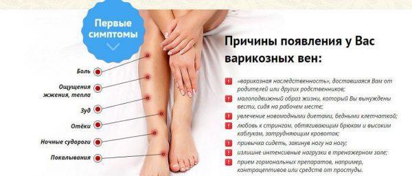 Причины и симптомы варикозного расширения вен
