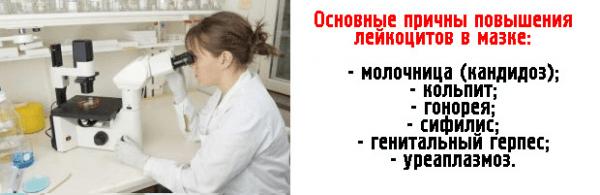 Причины повышения лейкоцитов в мазке