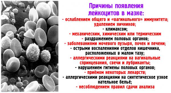 Причины появления лейкоцитов в мазке