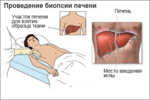Процесс проведения биопсии печени